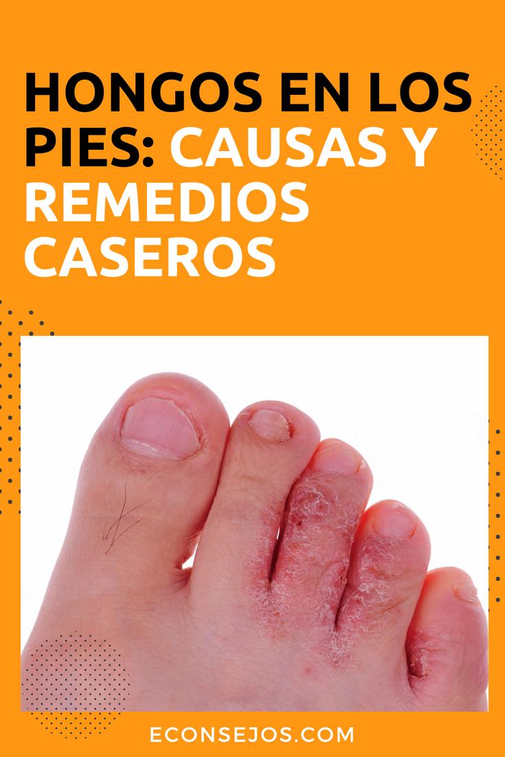 sintomas de hongos pies