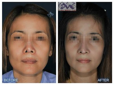 positive effects of cosmetic surgery