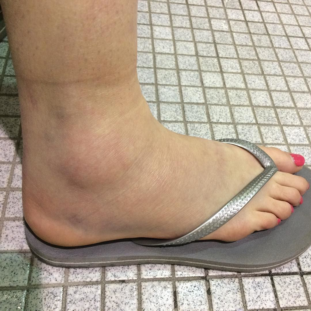 Ankle sprain day 2  Lots of swelling pitting edema and