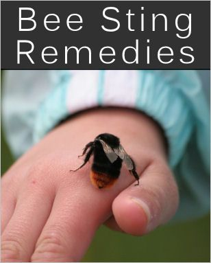 BEE STINGS: 15 Bee Sting Home Remedies & Tips