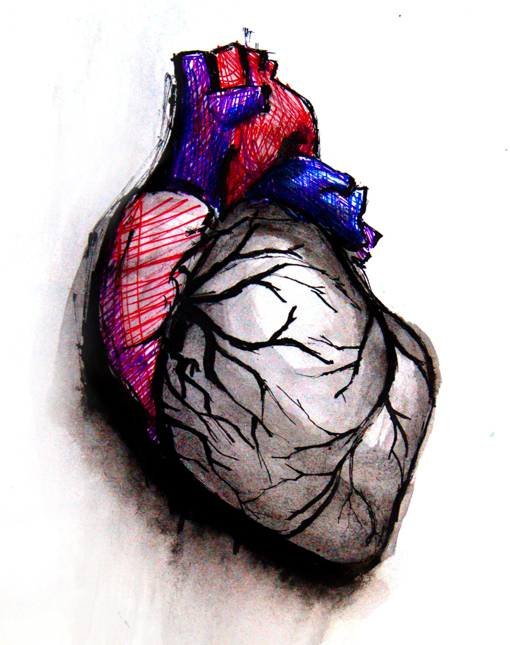 Heart Art | Page 4 | ECG Guru - Instructor Resources