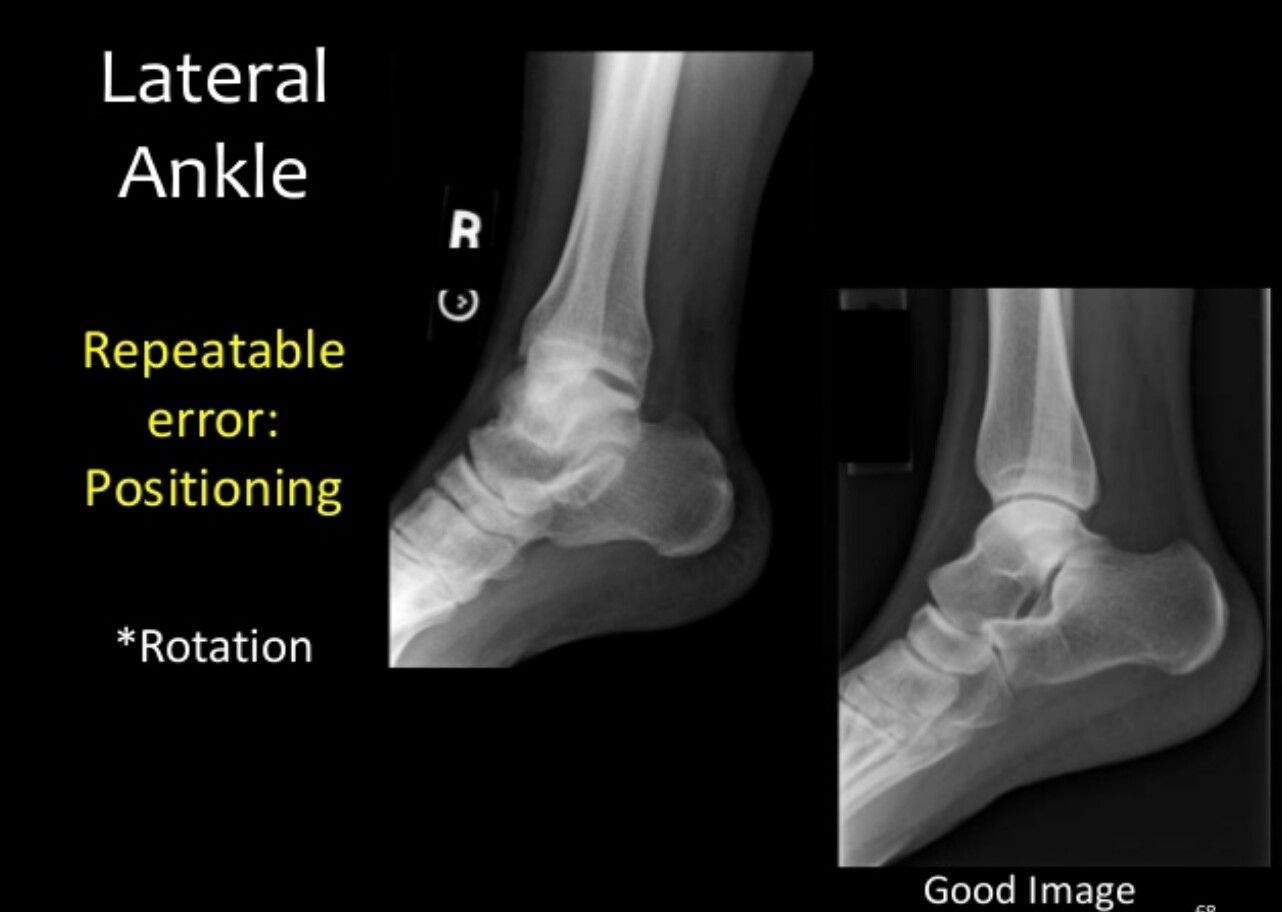 Good Lateral Ankle Rad Tech Pinterest Radiology Rad Tech And