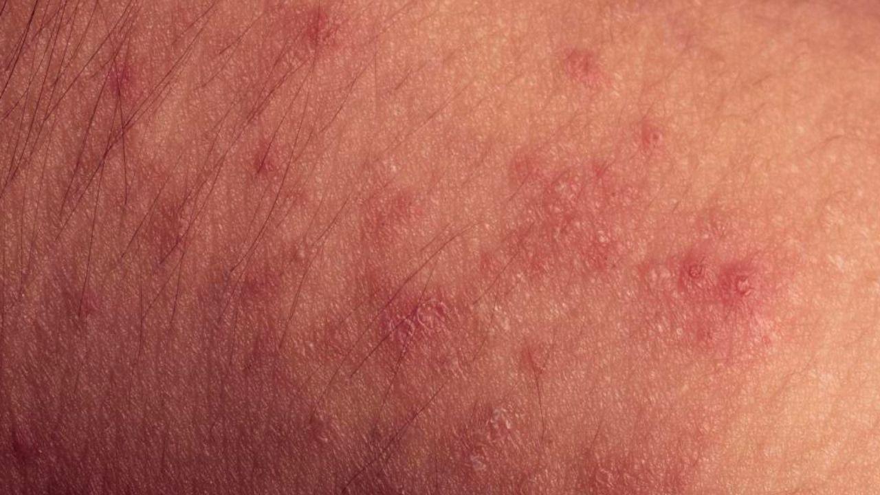 What Is A Morbilliform Rash Health Allergic Reaction