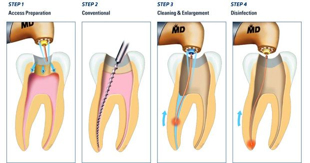 A Dentist Exposes The Root Canal Coverup Global Unrest In 2020 Root Canal Root Canal Treatment Dental Procedures