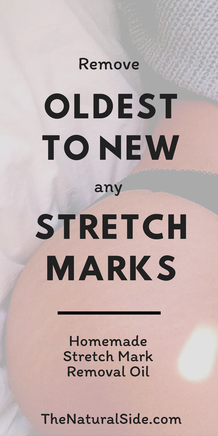 Stretch Mark Removal Oil  Recipe  Stretch marks Remedies and