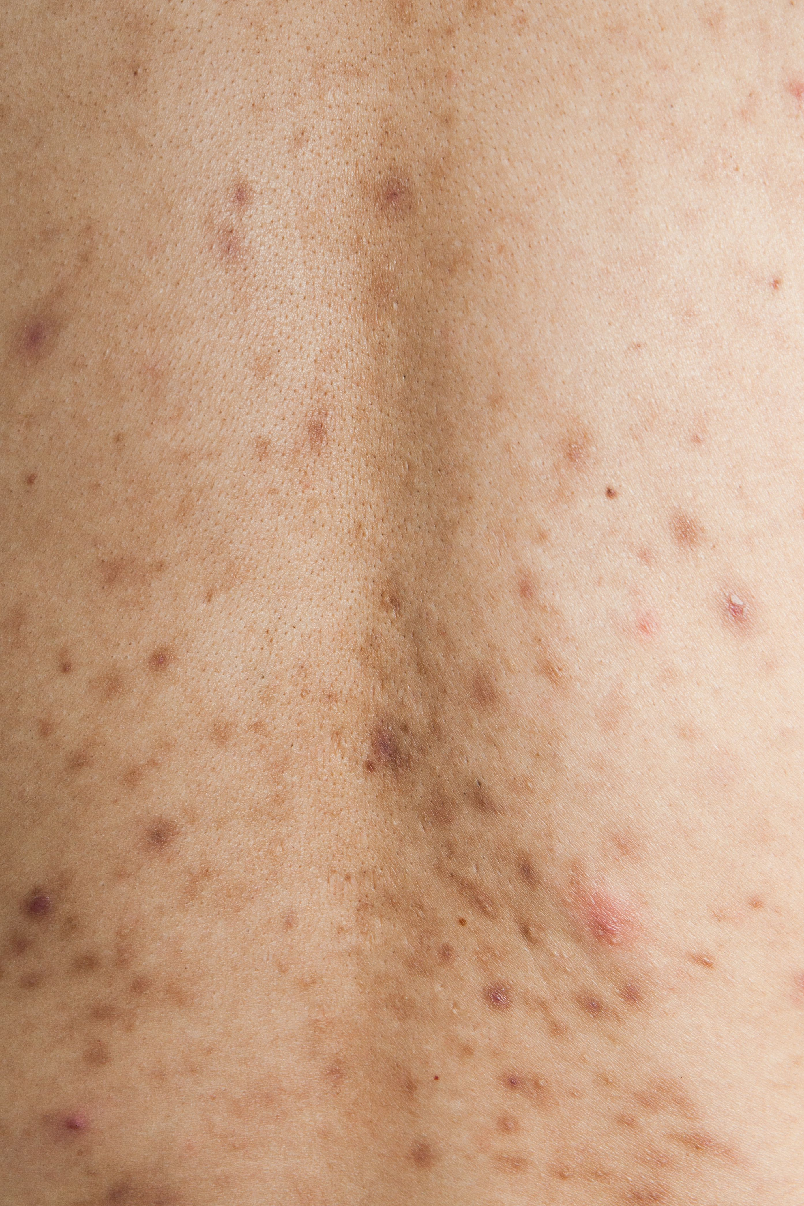 7b446aa489ba3d821c862b7a953822f6 - How To Get Rid Of Post Inflammatory Hyperpigmentation Naturally