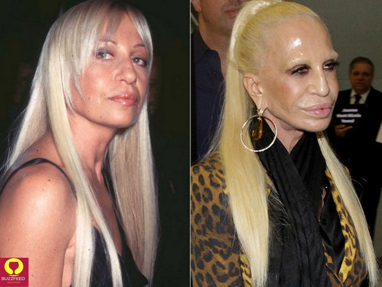 celebrity before and after plastic surgery   befor and after
