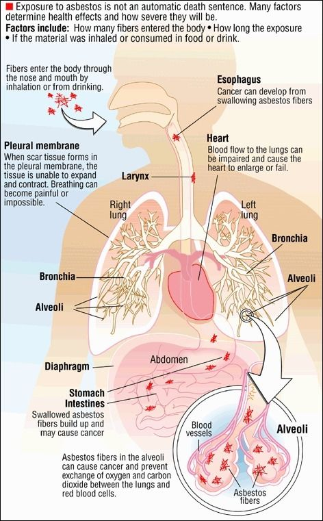 En Asbestos Medical Glossary Asthma Treatment Cancer Facts