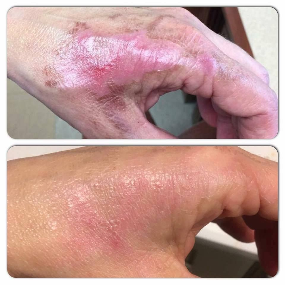 Before And After Of Pure Haven Essentials Boo Boo Stick Used On A Burn I Love The Healing Power Of This Product Pure Products Healing Powers Haven