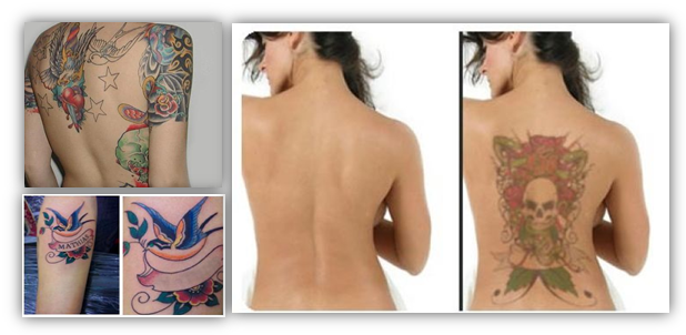 Get Rid Tattoo Review - Natural Tattoo Removal Solution | Tattoo ...