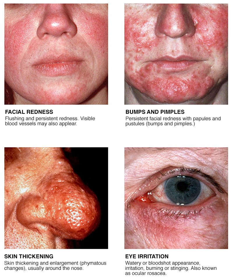 All About Rosacea Skin Care Rosacea Facial Warts