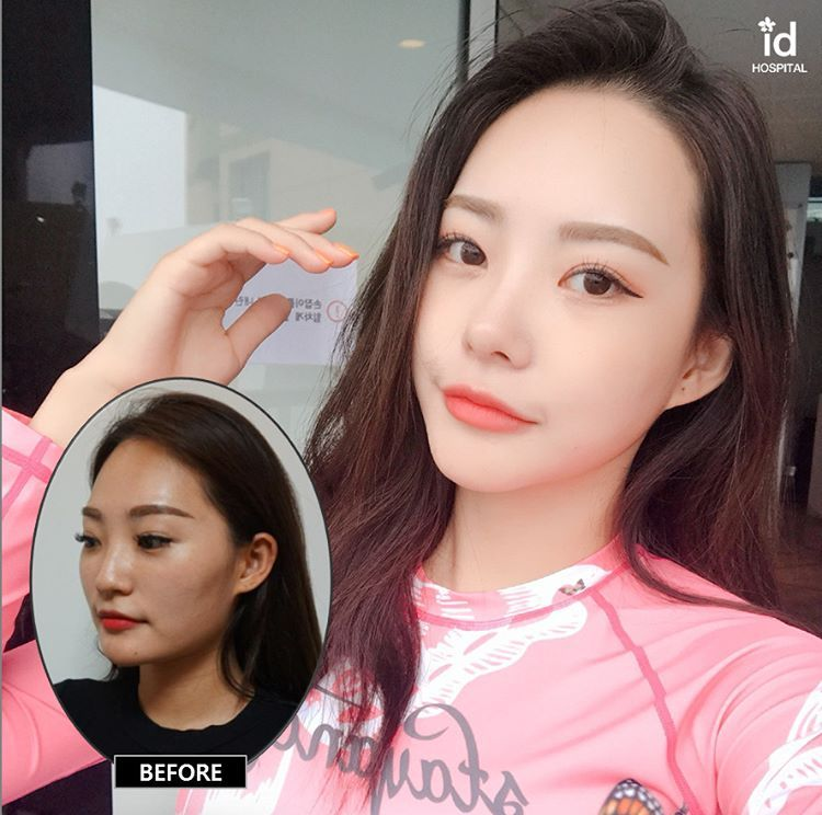 9 Months Change After Id Hospital Look How She Transformed In Id I Wish This Dramatic Result Happens To Me Rhinoplasty Beauty Clinic Plastic Surgery