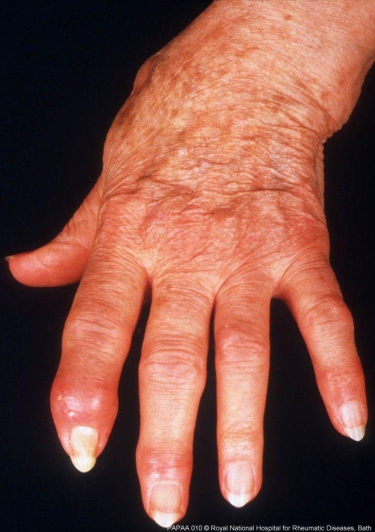 arthritis psoriatica sintomas a csukló ízületi kezelése hogyan kell kezelni