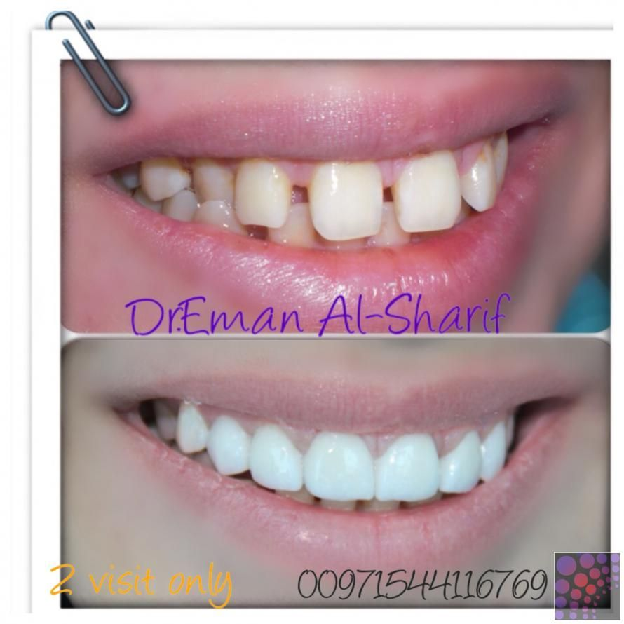 Best veneer in AZ Need a Dental Clinic? We Offer Reliable