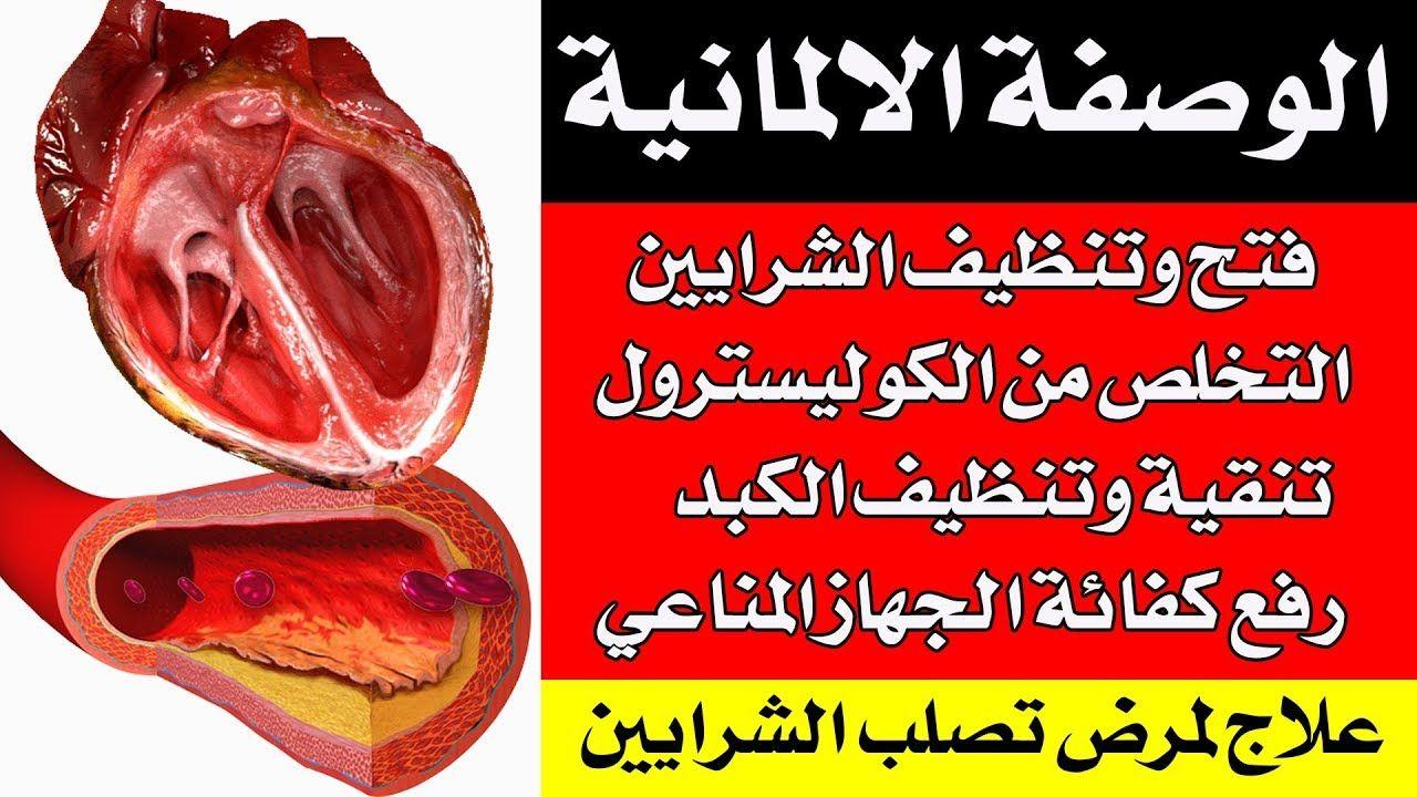 وصفة فتح وتنظيف الشرايين ووقاية القلب والكبد وتخفيض الكوليسترول مجربة بنجاح على مدى قرون Food Beef Meat