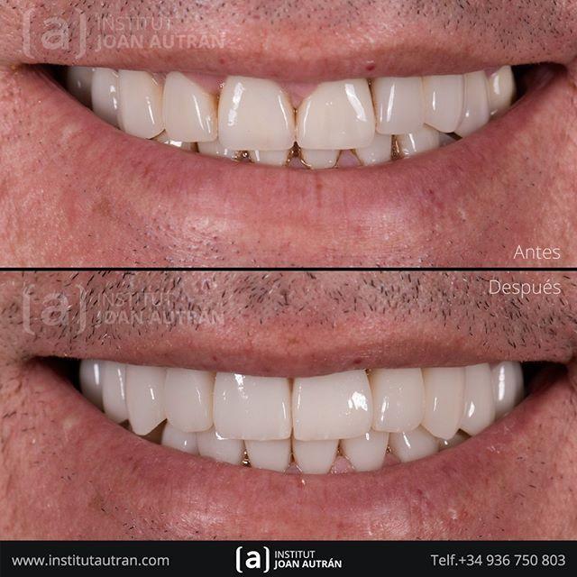 Pin De Martin Navarro En Cuidado Dental Carillas Dentales Estetica Dental Diseños De Sonrisa
