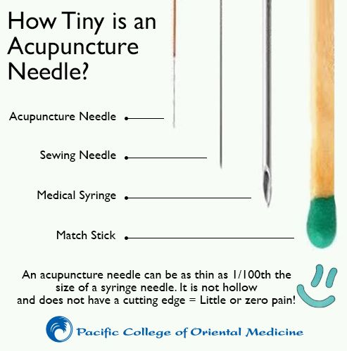 Worried about trying acupuncture because you have a fear of needles worried about trying acupuncture because you have a fear of needles see how fine an acupuncture needle really issome people actually compare the width to solutioingenieria
