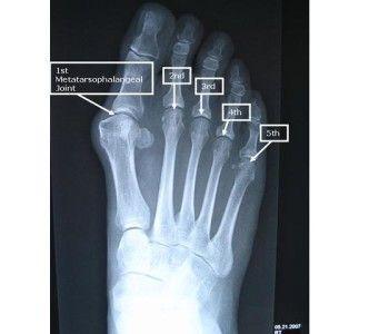 Osteocondroza in tratamentul ciobanesc