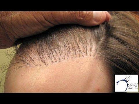 زراعة الشعر زرع الشعر واضراره على الانسان زراعة الشعر في ايران Hair Plugs Behind Ear Tattoo Hair