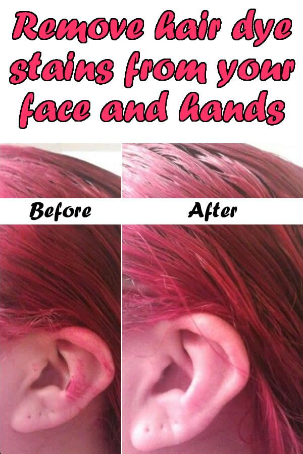 Remove Hair Dye Stains From Your Face And Hands Oh My Pinterest