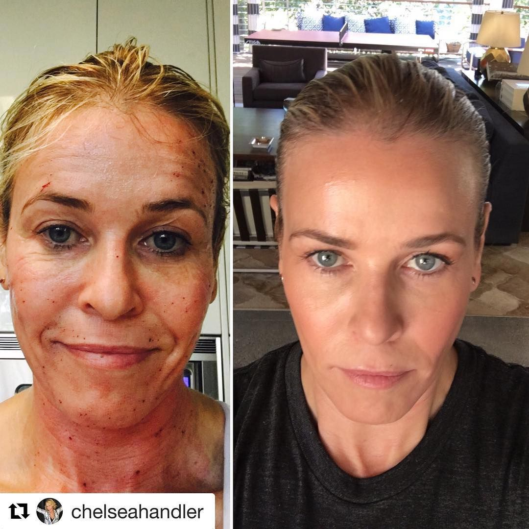 How Chelsea Handler does it. Using micro needling to