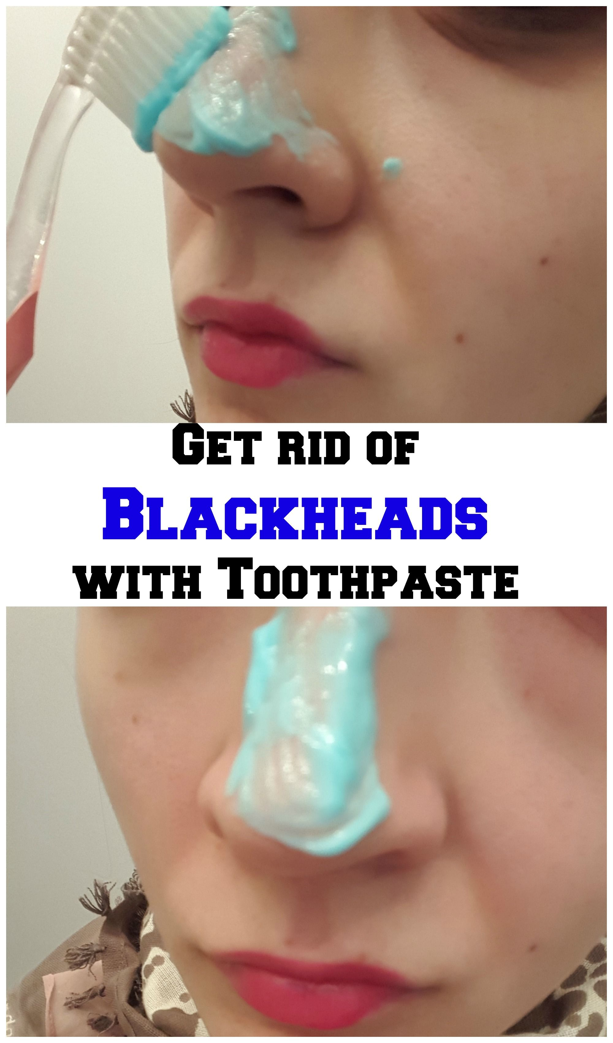 Get Rid Of Blackheads With Toothpaste Get Rid Of Blackheads Blackheads Natural Mask