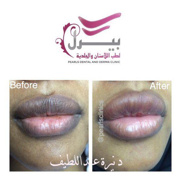جلسة ميزو لتفتيح وتوريد الشفاه تم التصوير على احدى موظفات المركز مركز بيرل اسنان جلدية ليزر الرياض Dental Lipstick Beauty