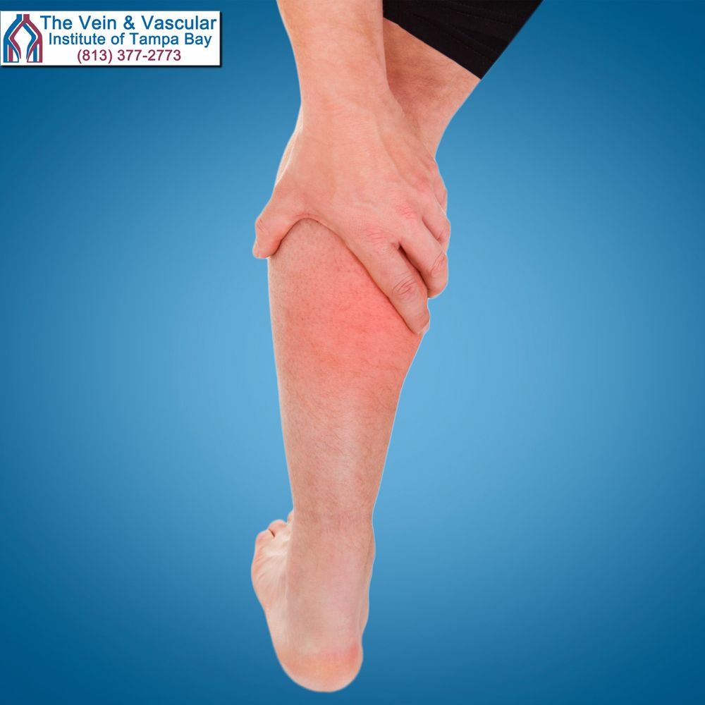 The feeling of tightness in the calves, pain and swelling in the ...