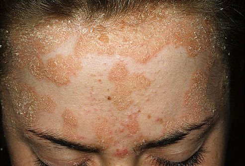 dry flakey skin on face