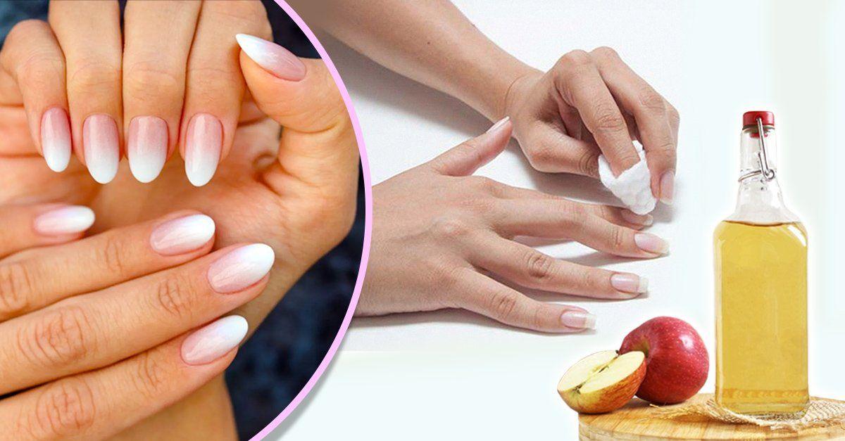 El Vinagre De Manzana Ayuda A Fortalecer Las Uñas Y Tenerlas Bonitas Vinagre De Manzana Las Uñas Manicura