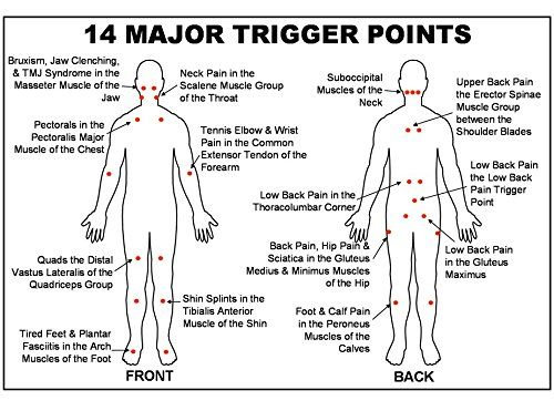 Graphic Of 14 Major Trigger Pints For Tens Use With Images Trigger Points Trigger Point Therapy Medical Massage