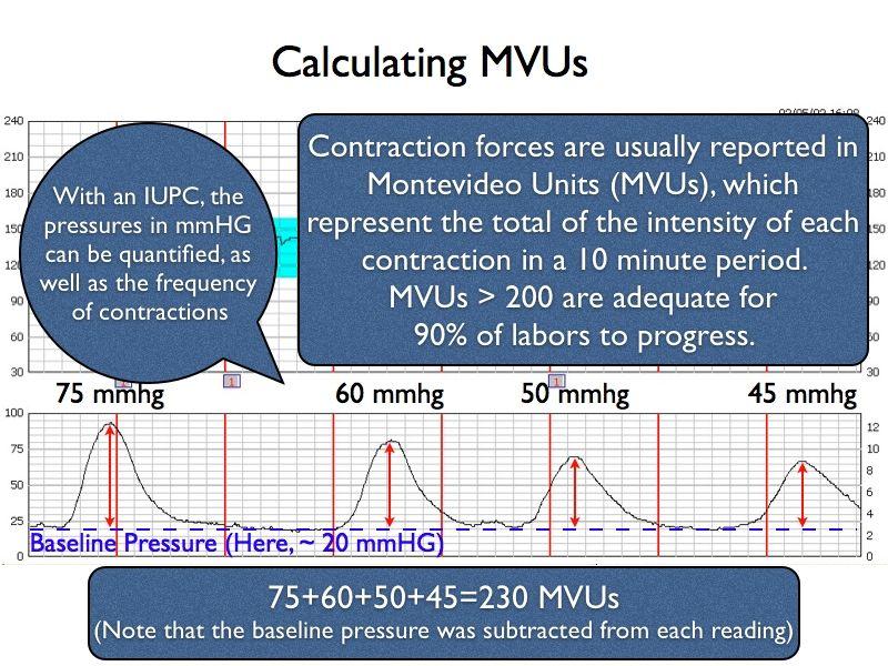 How To Calculate Montevideo Units Modelos De