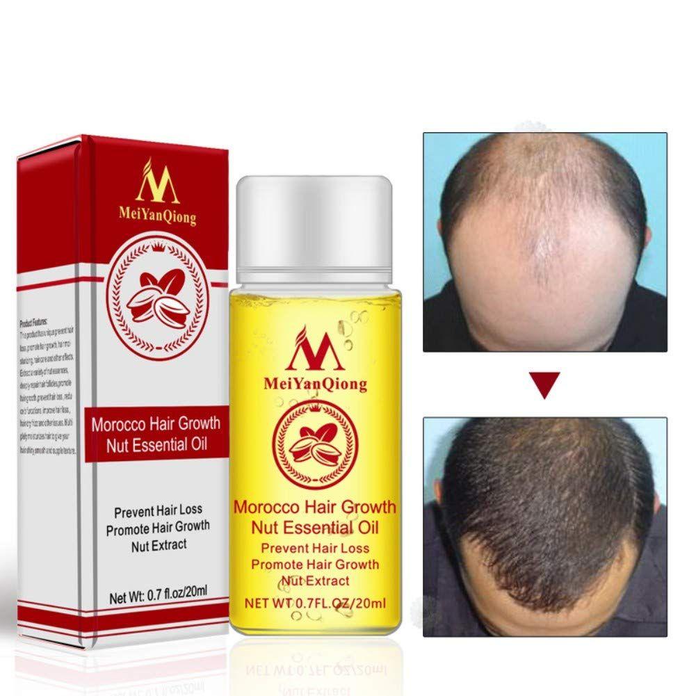 2pcs Hair Growth Essential Oil, Morocco Hair Growth Nut