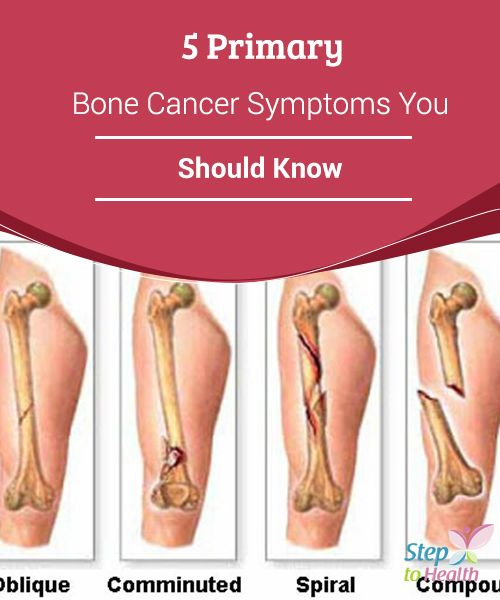 5 Primary Bone Cancer Symptoms You Should Know Health Medical