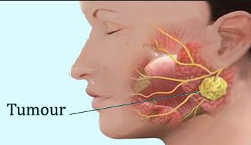 سرطان الغدد اللعابية هو عبارة عن نمو بعض الخلايا بصورة غير طبيعية وخارجة عن السيطرة ويحدث هذا السرطان عندما ت صاب أى من Simple House Plans Cancer Simple House