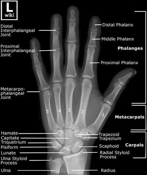Radiographic Anatomy of the Hand. Clínica de Artrosis y Osteoporosis ...