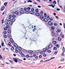 STRATIFIED CUBOIDAL EPITHELIUM. Histology slides