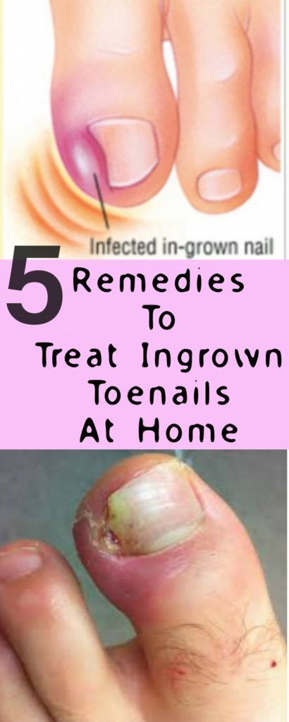5 Remedies To Treat Ingrown Toenails At Home You can use a cotton ...