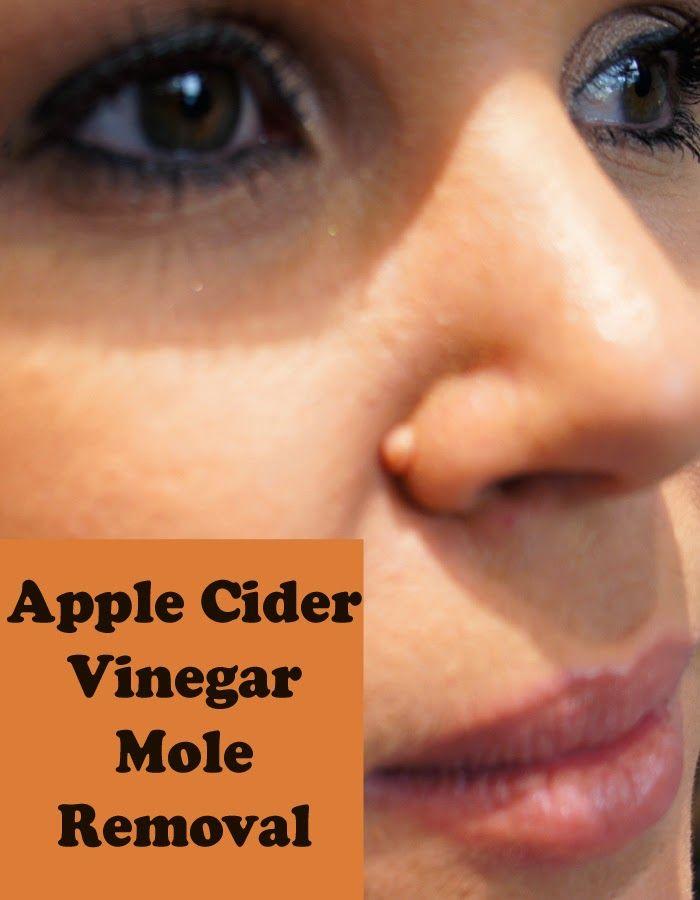 Natural Mole Removal Apple Cider Vinegar