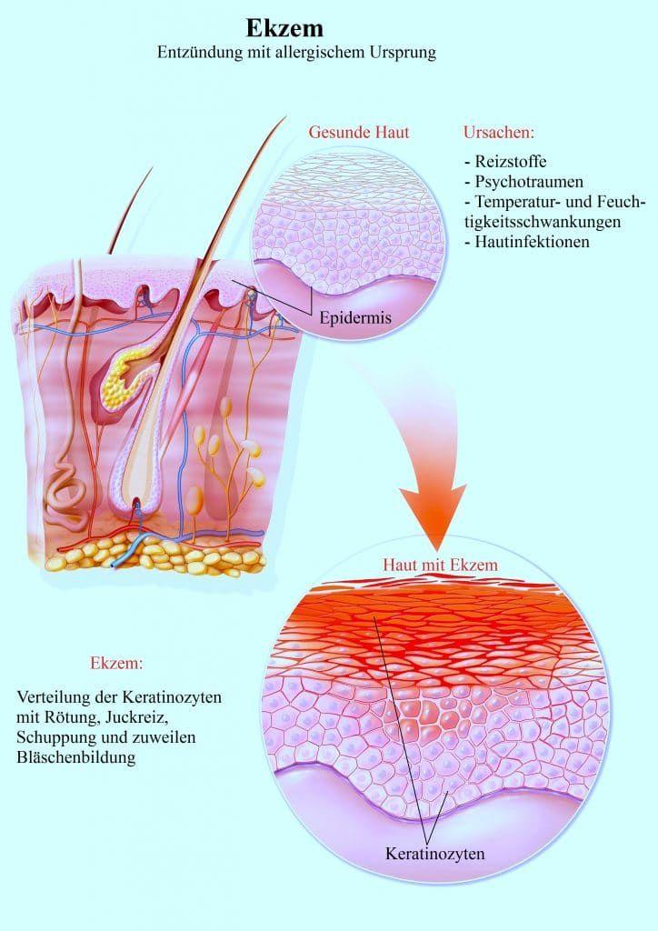 Salbe Gegen Hautausschlag Juckreiz