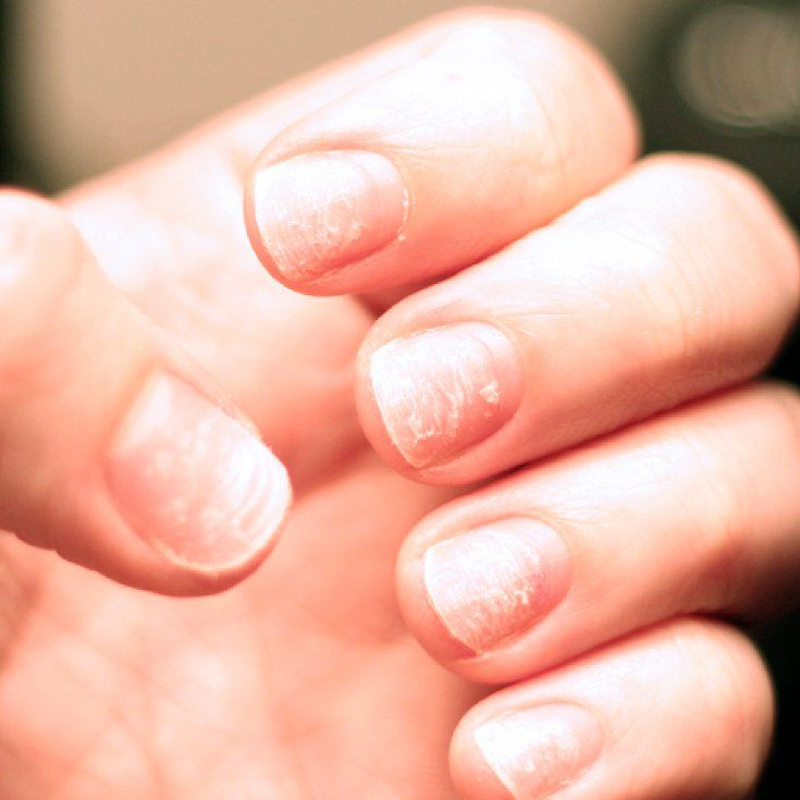 Brittle Nails Causes Risk Factors 9 Natural Treatments