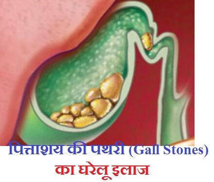 Gall Bladder Stone Removal Ayurvedic Way In Hindi  | health | Stone