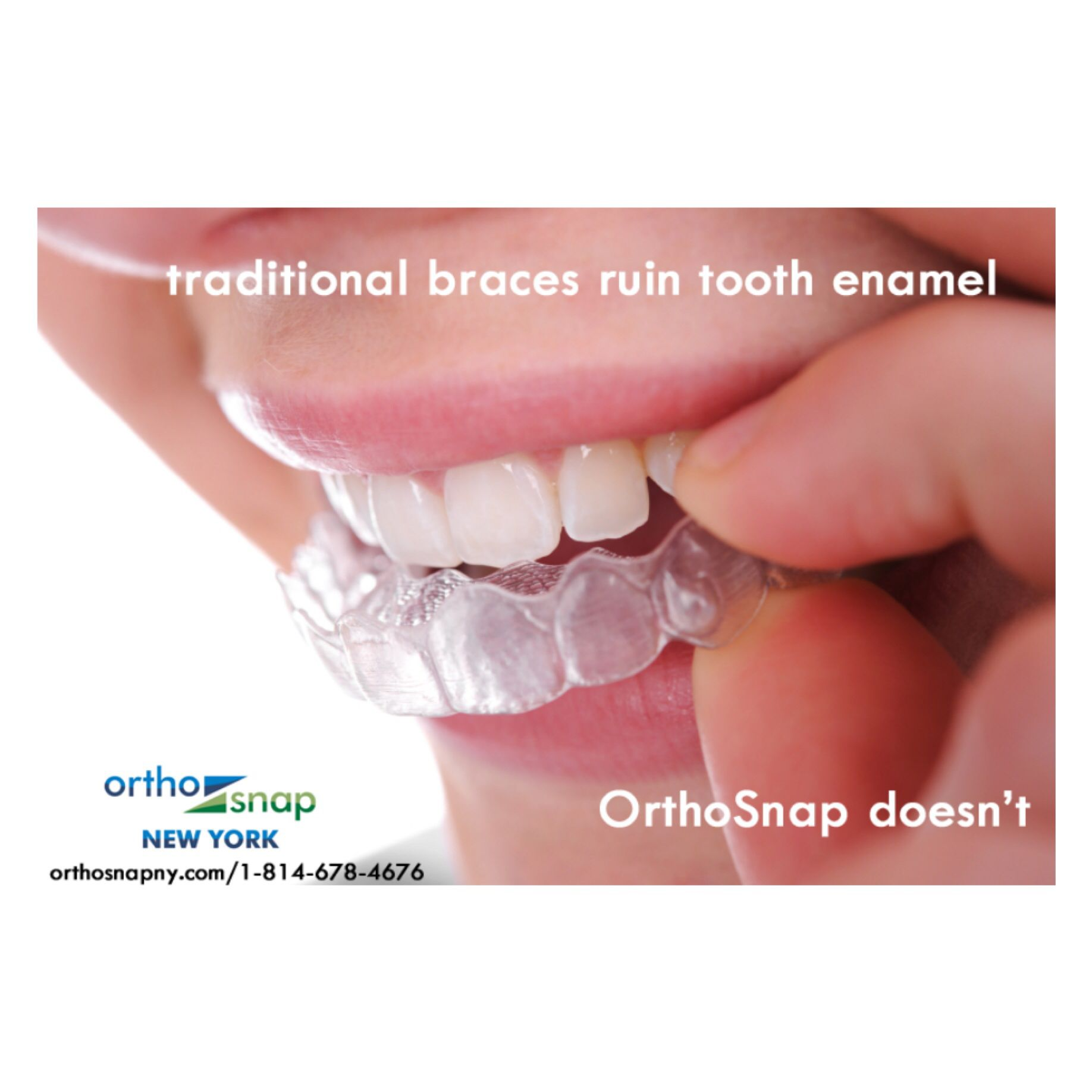 Get straight teeth smile with confidence http