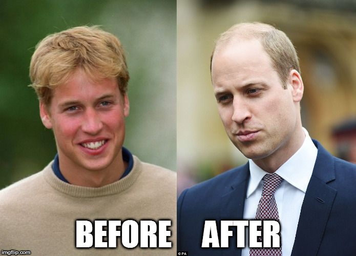 Prince William And After