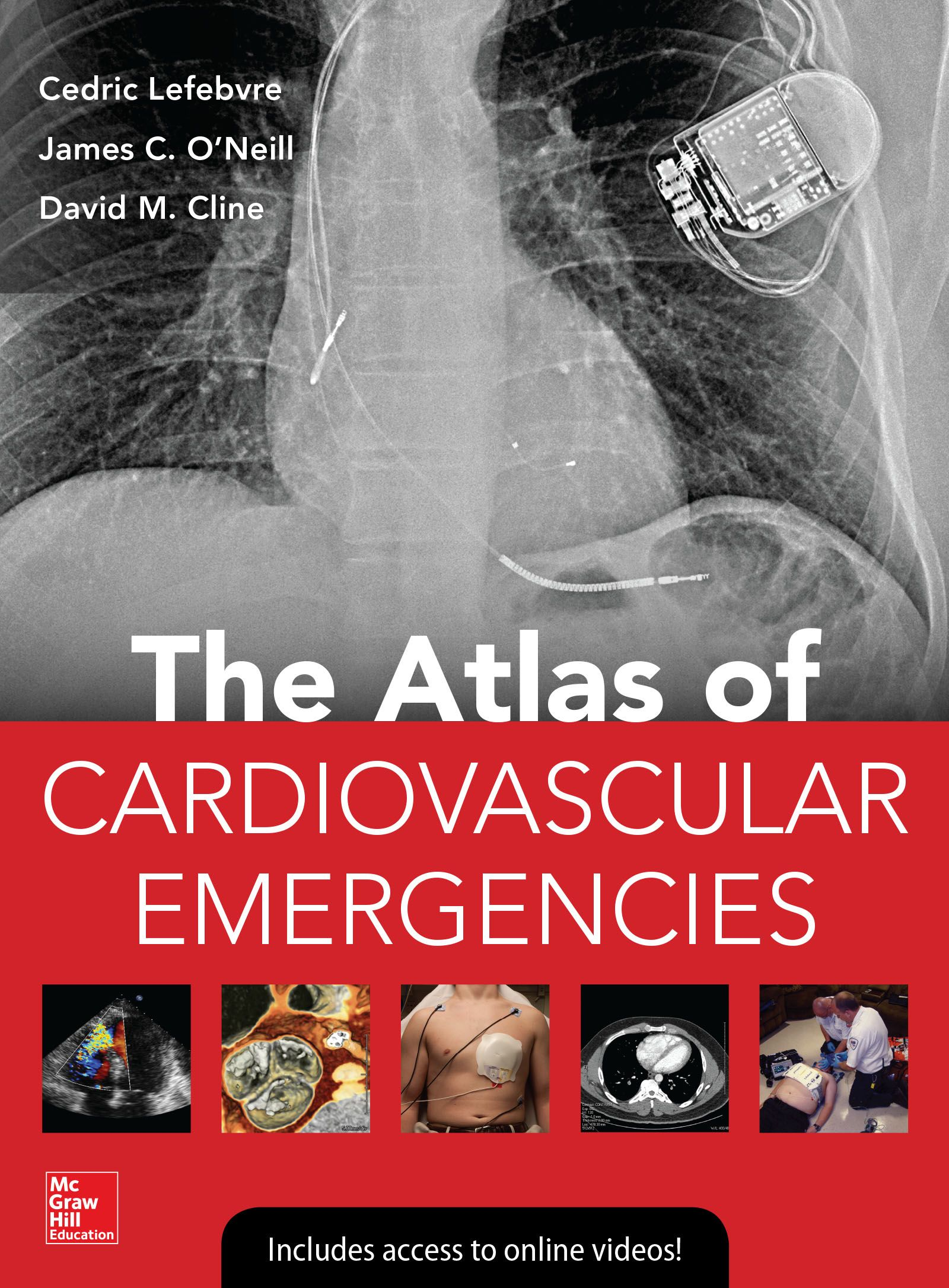 Atlas of cardiovascular emergencies accessemergency