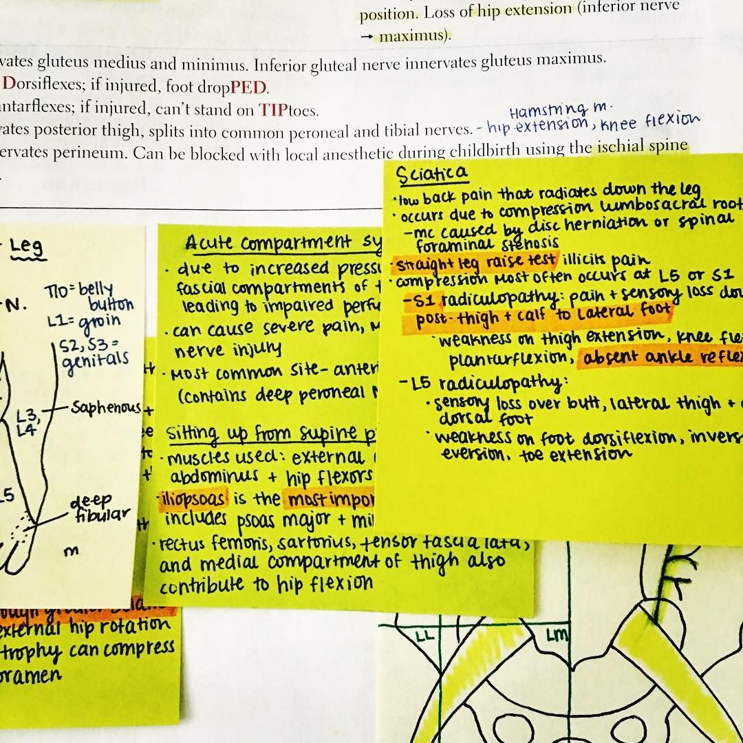 Sticky note game on point 👌🏾 Green is for UWorld  #medschool