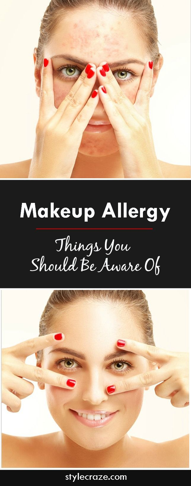 Skin Allergy Causes, Symptoms, Home Remedies, And