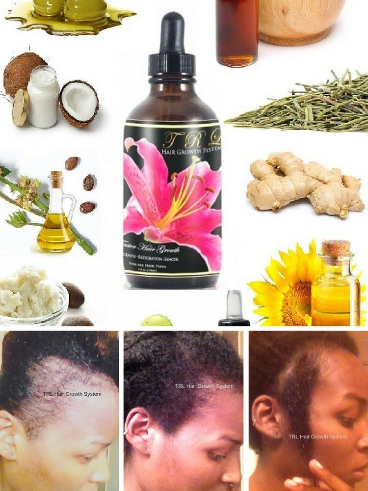 TRL Faster Hair Growth Oil >>> For more information, visit