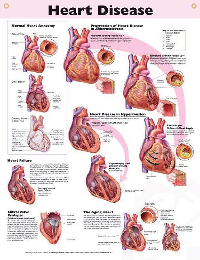 Heart Disease Chart 20x26 | Mitral valve prolapse, Mitral valve and ...