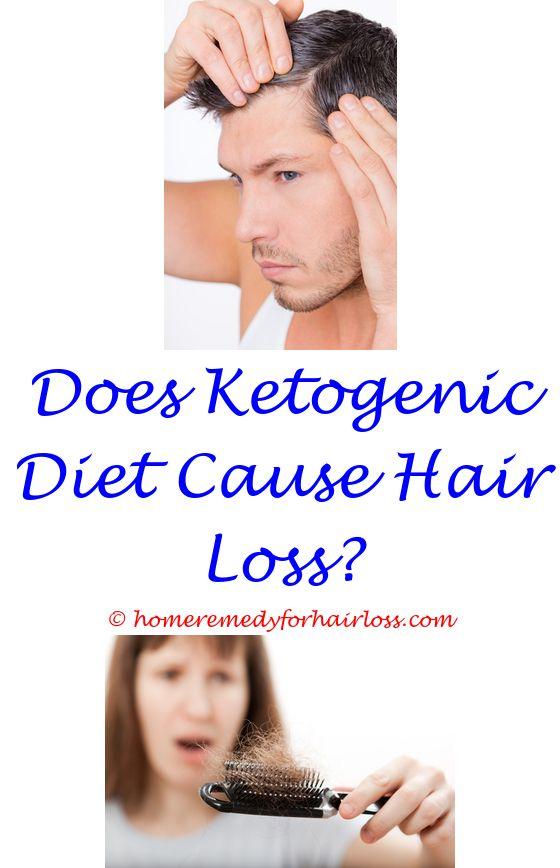 de lorenzo shampoo hair loss - t17 for hypothyroidism hair loss.ppi ...